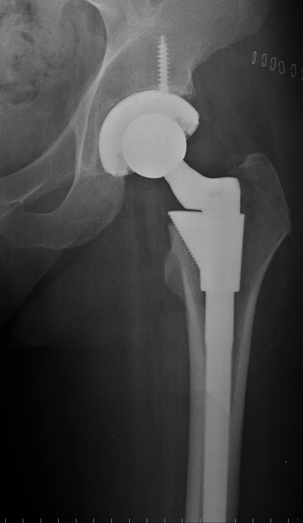 hip replacement 2.jpg